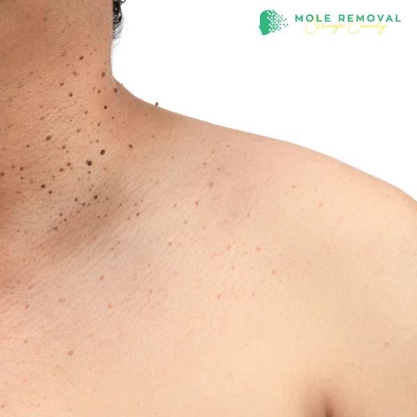 skin tag removal orange county