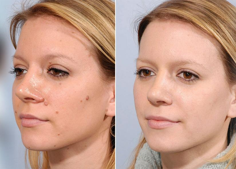 skin tag and mole removal san clemente