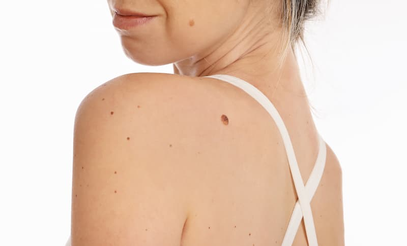 best mole removal ladera ranch